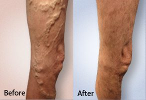 before and after photo of varicose vein treatment on the leg of patient